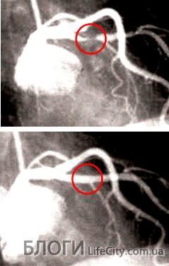 инфаркт миокарда симптомы