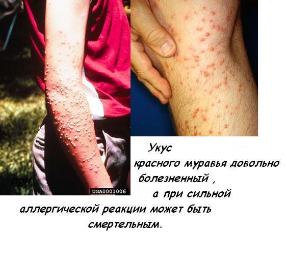Укус красного муравья довольно болезненный, а при сильной аллергической...